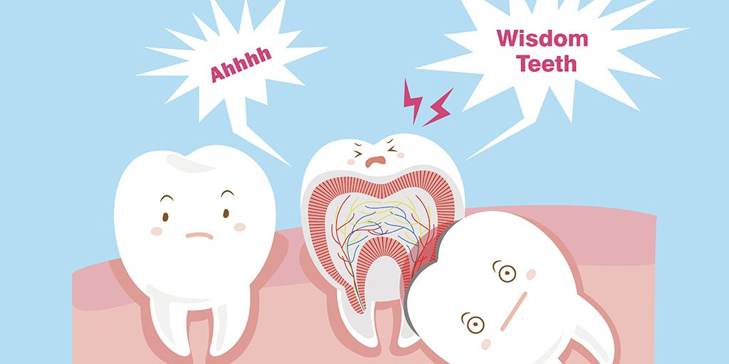 What You Need to Know About Wisdom Tooth Removal - Breeze Dental